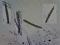 Geoglossum cookeanum Nannf. spores